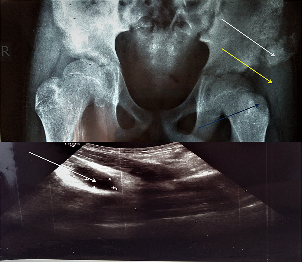 Radiograph-and-ultrasonography-(USG)-of-patient-No.-2.-Calcification-of-a-cystic-formation-(abscess)-next-to-the-left-iliac-wing-(white-arrows).-USG-report-mentions-a-cystic-formation-(abscess)-inside-the-left-psoas-muscle-with-dimensions-of-3.94-cm-x-2.01-cm.-Swelling-of-soft-tissue-over-the-left-trochanteric-area-(yellow-arrow).-Lytic-lesion-on-the-left-trochanter-(blue-arrow).