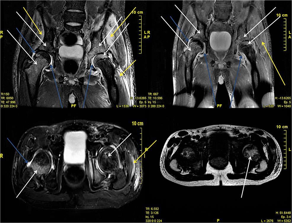 Magnetic-resonance-imaging-(MRI)-scan-of-patient-No.-2.-The-white-arrows-point-to-bone-involvement-(osteomyelitis).-The-yellow-arrows-point-to-the-soft-tissue-involvement-(myositis).-The-blue-arrows-point-to-the-arthrosis-involvement-(septic-arthritis).