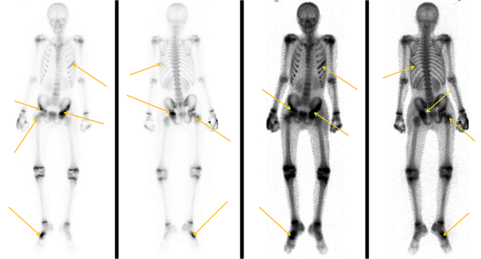 Bone-scan-of-patient-No.-2.-The-arrows-point-to-the-bone-involvement.