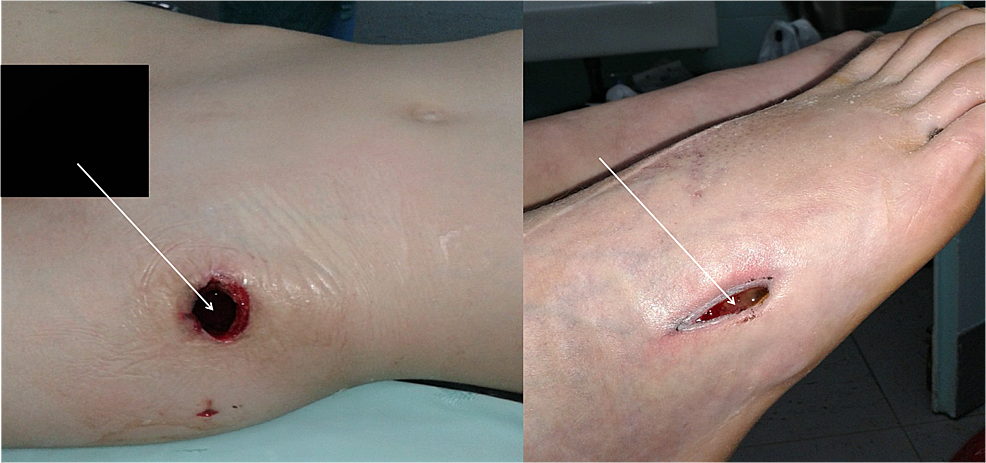 Wounds-over-the-left-hip-and-fifth-right-metatarsal-for-the-drainage-of-the-abscesses.
