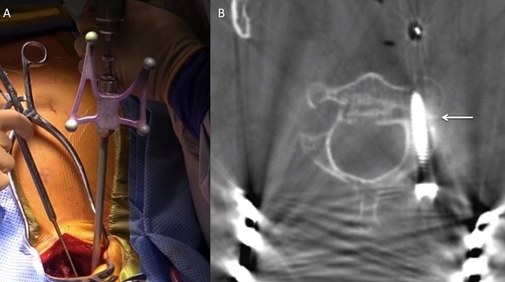 Intraoperative-left-C2-pedicle-screw-placement-across-the-fracture-line-using-navigation.