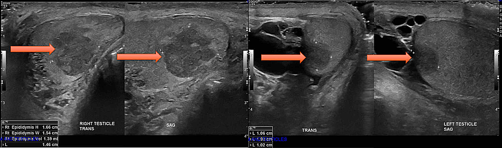 Ultrasound-images-of-bilateral-testicles