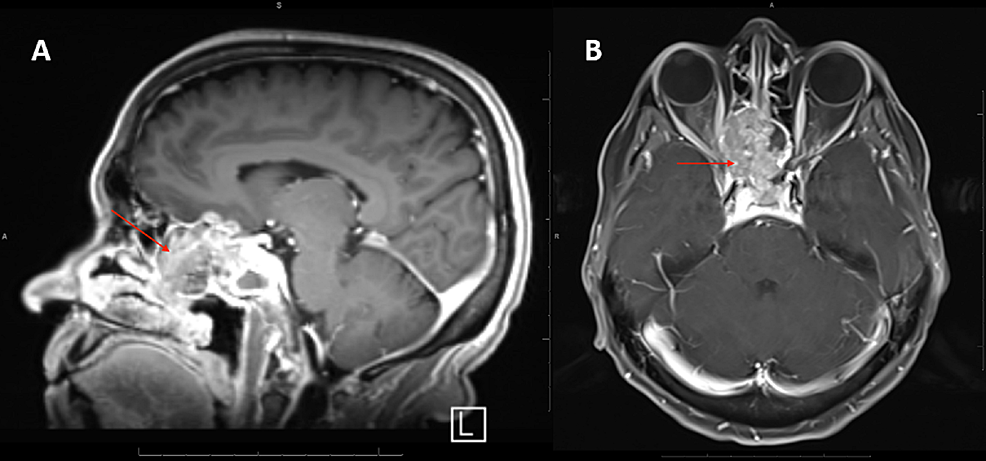 T1-enhanced-magnetic-resonance-imaging-(MRI)-with-fat-suppression-showing-sinonasal-squamous-cell-carcinoma-(SCC)-of-the-ethmoid-air-cells-extending-into-the-adjacent-ethmoid-sinus