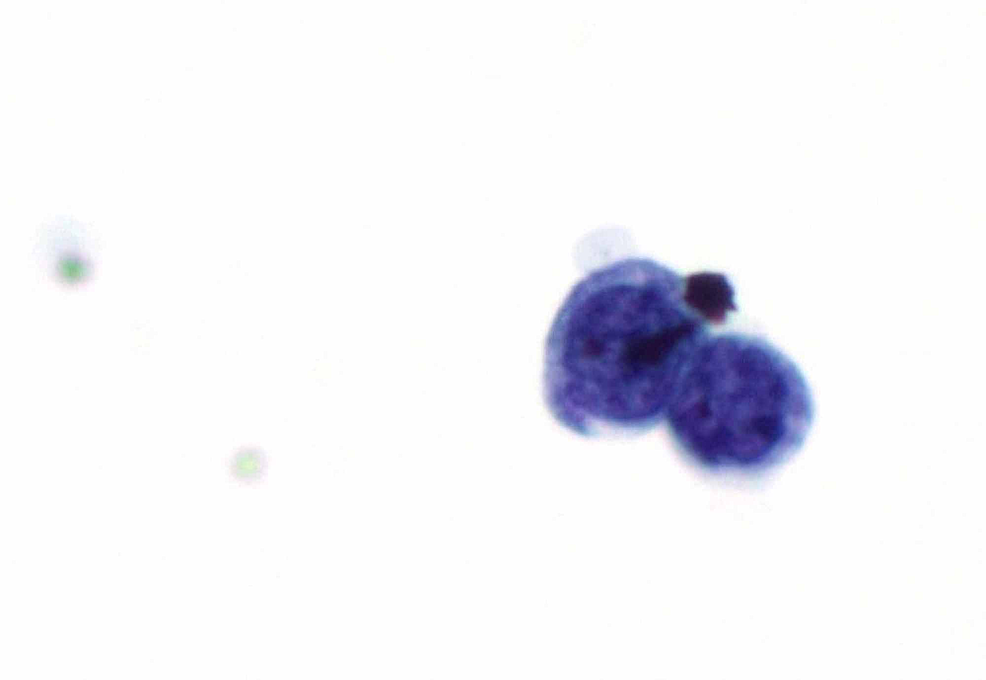 The-malignant-cells-had-enlarged,-hyperchromatic-nuclei,-and-minimal-cytoplasm