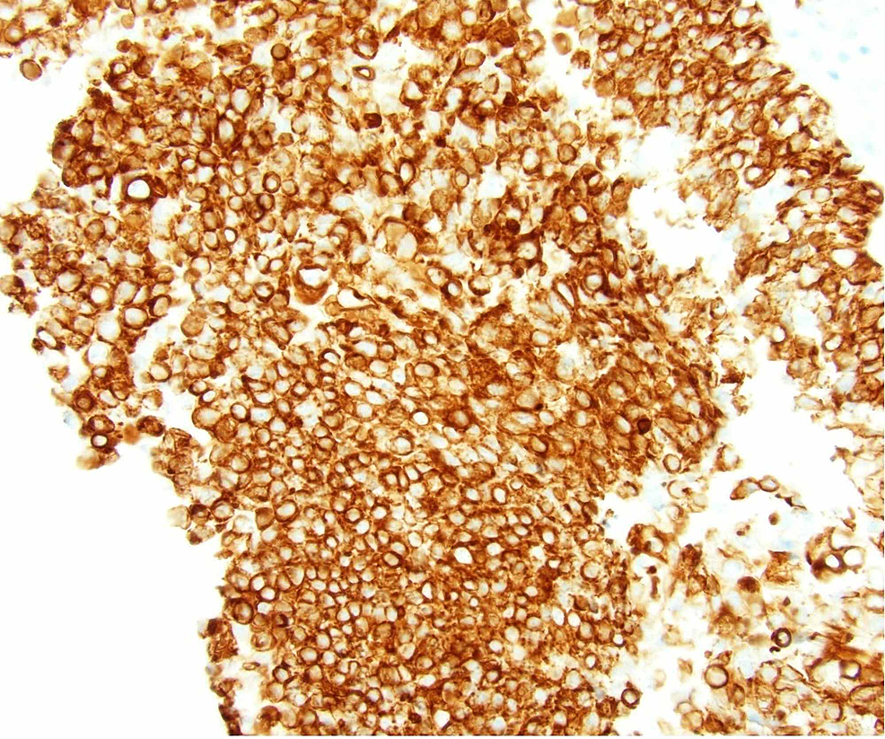 By-immunohistochemistry,-tumor-cells-were-positive-for-cytokeratin-5/6,-as-seen-in-squamous-cell-carcinoma.-Malignant-cells-were-present-in-the-cerebrospinal-fluid-specimen-evaluated-by-cytology