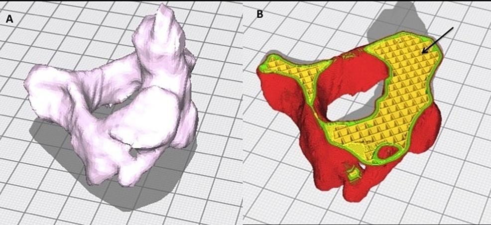 Software-design-of-experimental-C2-vertebral-model