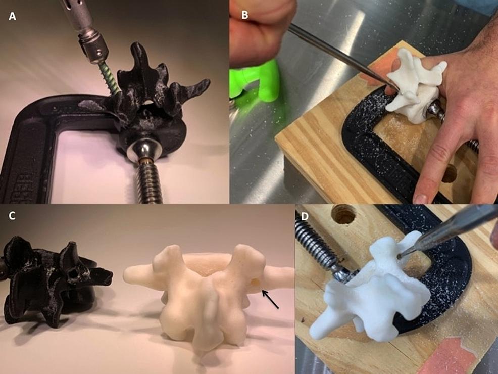Instrumentation-examples-of-the-L3-PLA/PVA-experimental-model-and-a-lumbar-vertebrae-resin-print-
