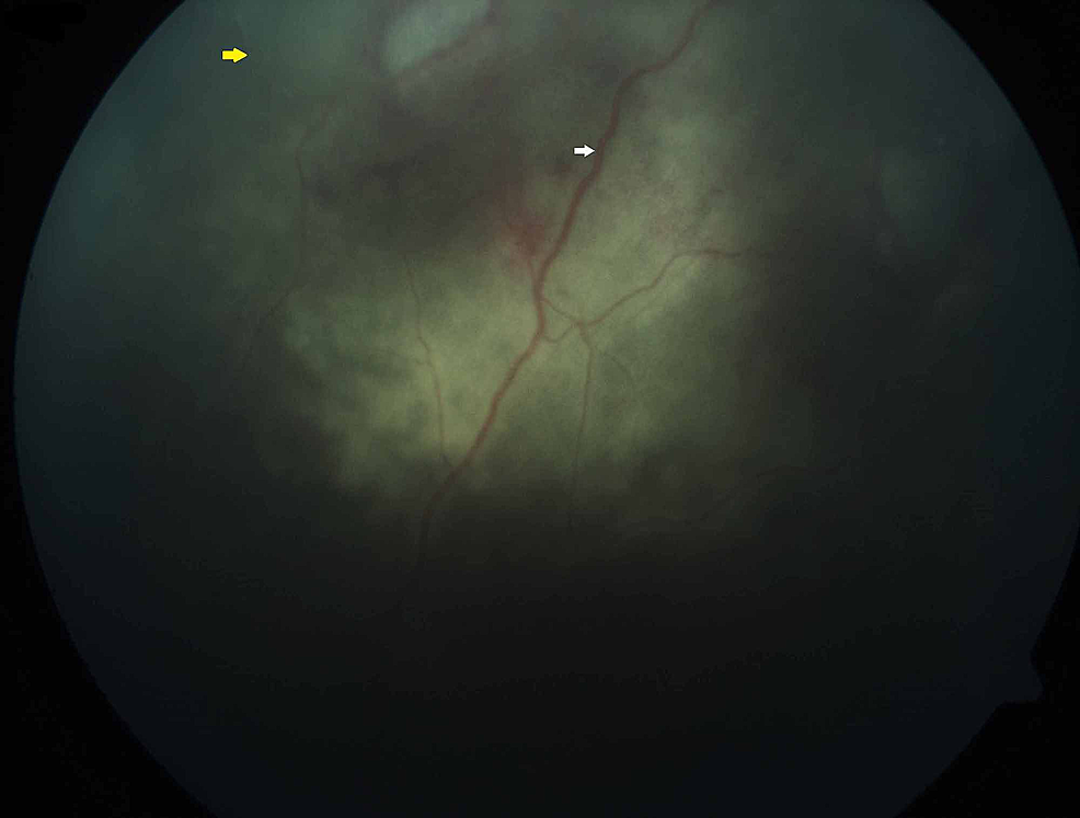 Funduscopy-examination-showing-sclerosed-(yellow-arrow)-and-attenuated-retina-vessels-(white-arrow)