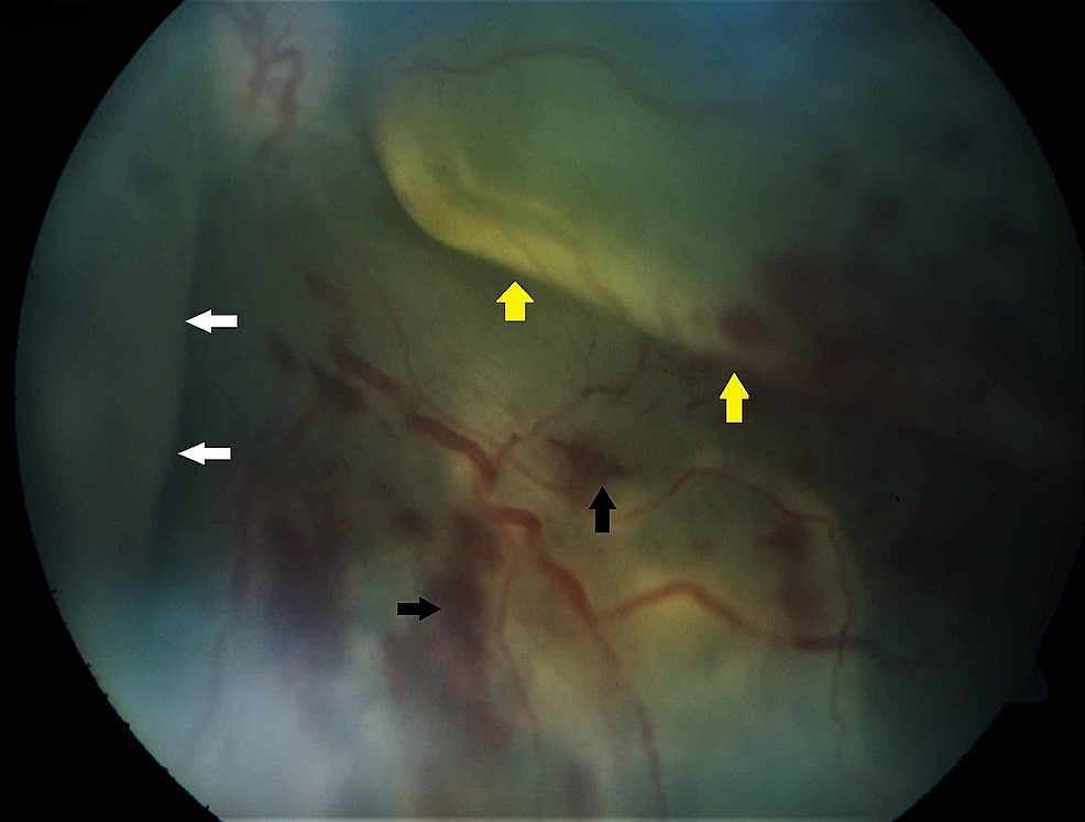 Funduscopy-examination-showing-telangiectatic-vessels-at-the-periphery-with-retinal-hemorrhages-(black-arrows),-subretinal-exudates-(white-arrows),-and-exudative-retinal-detachment-(yellow-arrows)