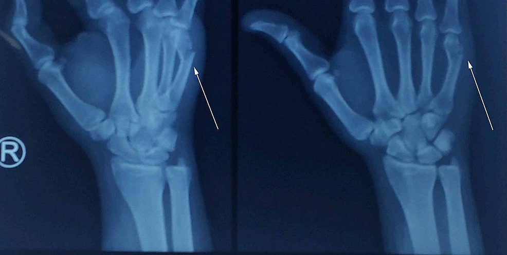 A-43-year-old-male-patient-with-metacarpal-fracture-due-to-a-road-traffic-accident