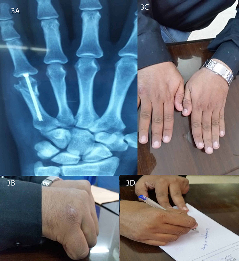 Follow-up-presentation-of-one-of-the-patients-with-a-radiographic-presentation-(3A)-and-live-views-(3B-3D)