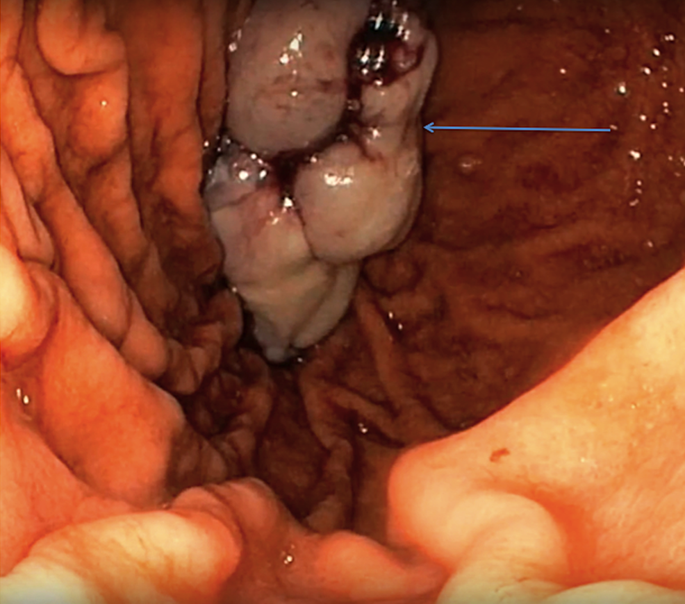 Resected-esophageal-mass-in-the-stomach