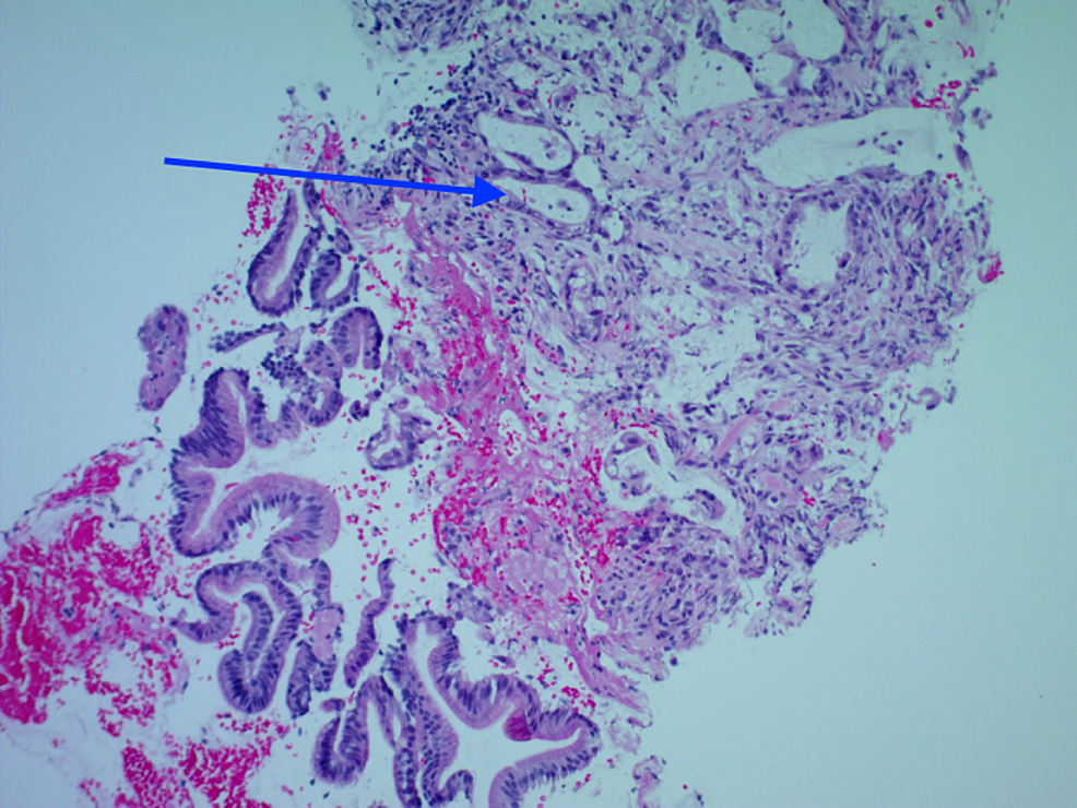 Detached-fragments-of-small-intestinal-surface-epithelium-with-a-fibrotic-stroma-involved-by-adenocarcinoma-(highlighted-by-blue-arrow).