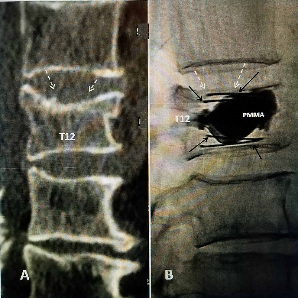 T12-fracture-with-two-SpineJack-implants-placed-in-vertebral-body-with-re-expansion-of-the-superior-endplate