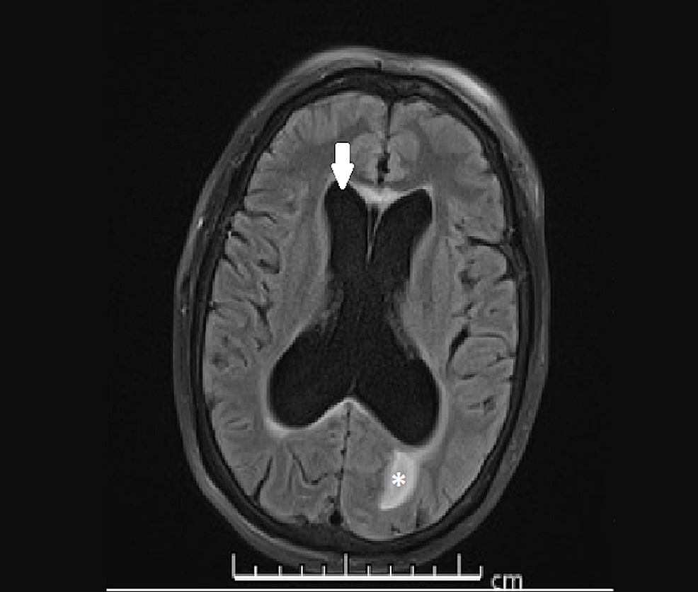 Obstructive-hydrocephalus,-magnetic-resonance-imaging-(T2-FLAIR-sequence).