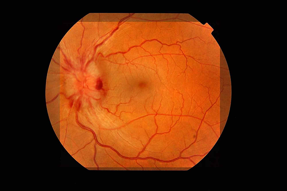 Left-optic-disc-showing-papilloedema-and-fundal-hemorrhages