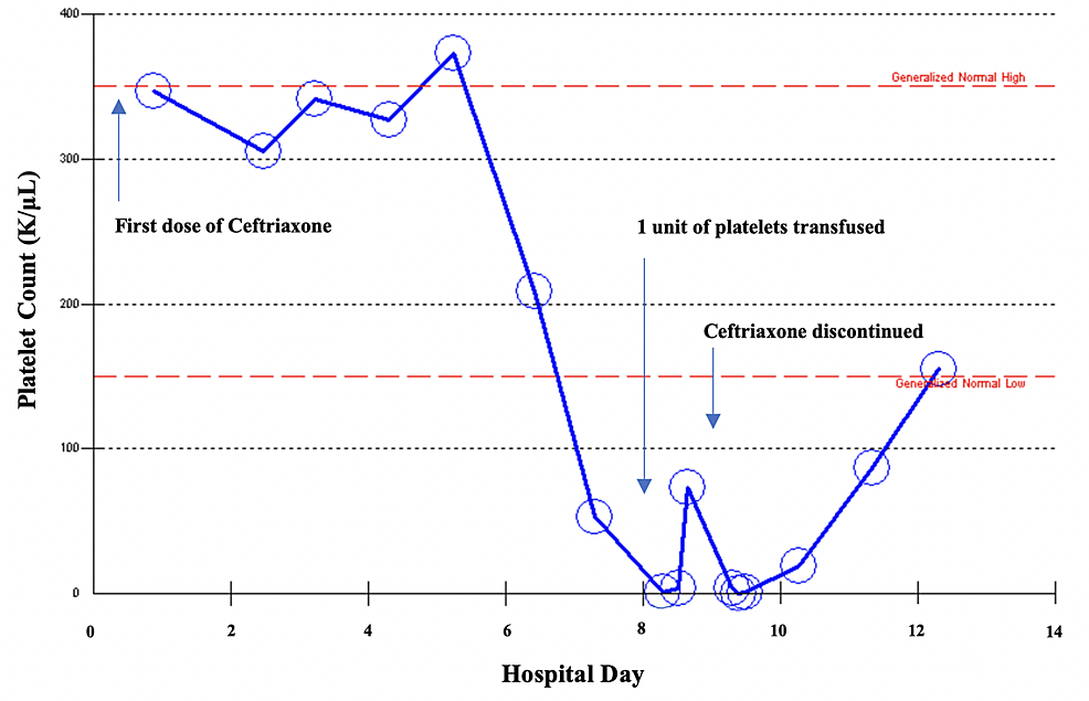 Trend-of-platelet-count-during-hospital-course-highlighting-causal-relationship-with-initiation-and-discontinuation-of-ceftriaxone.