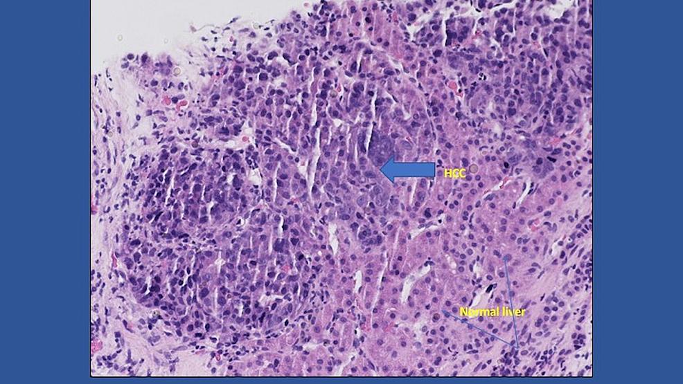 Hepatocellular-carcinoma-(HCC)-foci-(solid-arrow)-and-normal-liver-(line-arrow)-(H&E-x-40)
