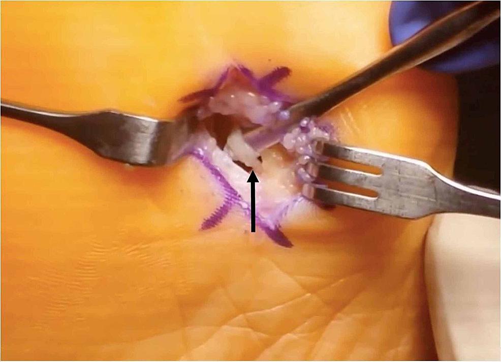 Plantar-incision-with-isolated-plantar-digital-nerve-(black-arrow)