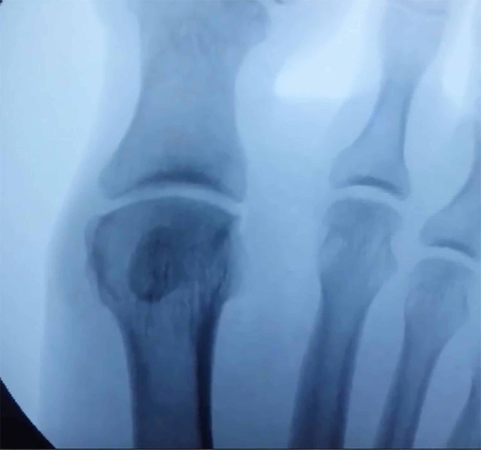 Intraoperative-image-after-sesamoid-excision