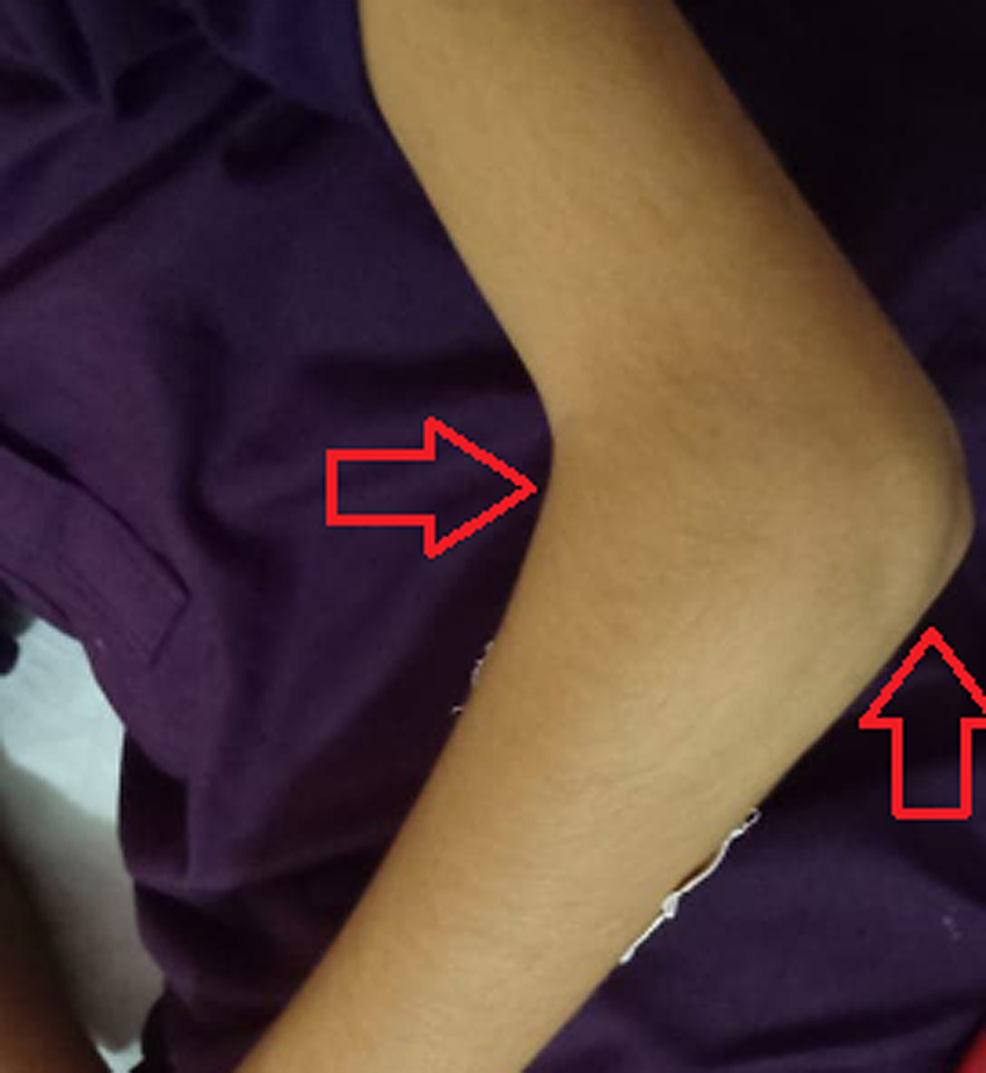 Right-elbow-showing-mild-swelling
