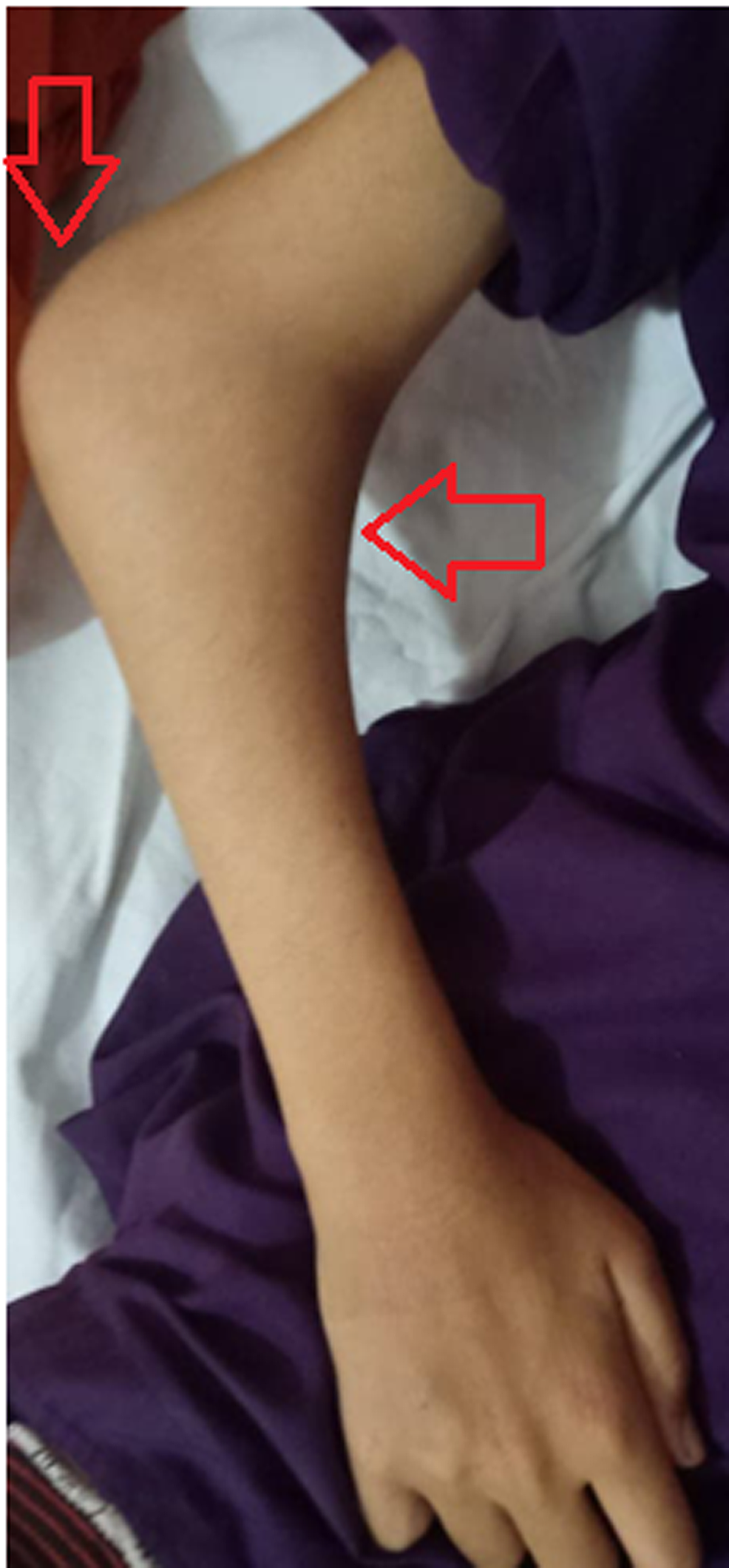 Left-elbow-in-semi-flexed-position-showing-large-swelling