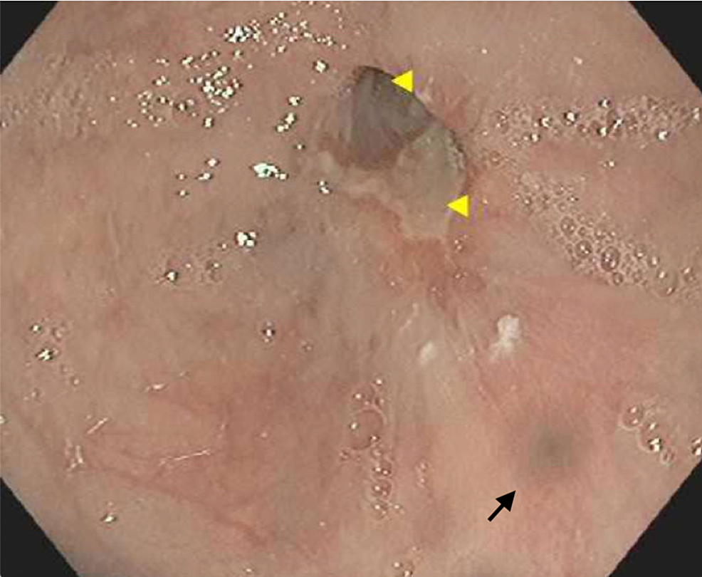 Esophagogastroduodenoscopy-showing-bluish-discoloration-at-the-distal-third-of-the-esophagus-(black-arrow)-and-a-non-bleeding-ulcer-at-the-gastroesophageal-junction-(yellow-arrowheads)