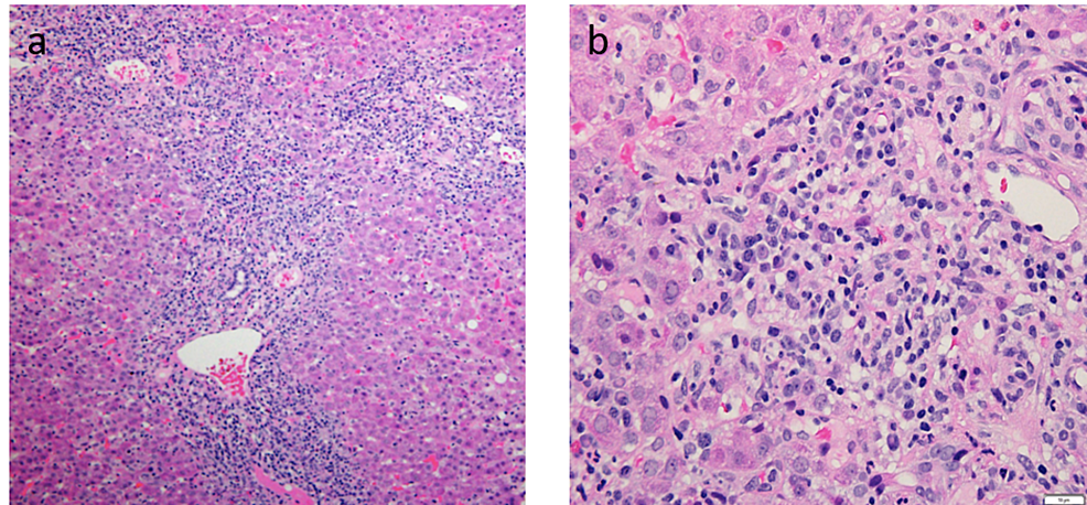Liver-biopsy-slides-of-findings-consistent-with-autoimmune-hepatitis.