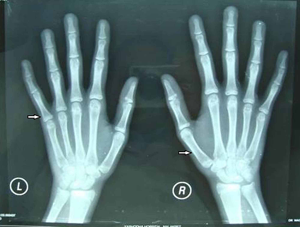 Hand-wrist-X-ray-of-female-patient