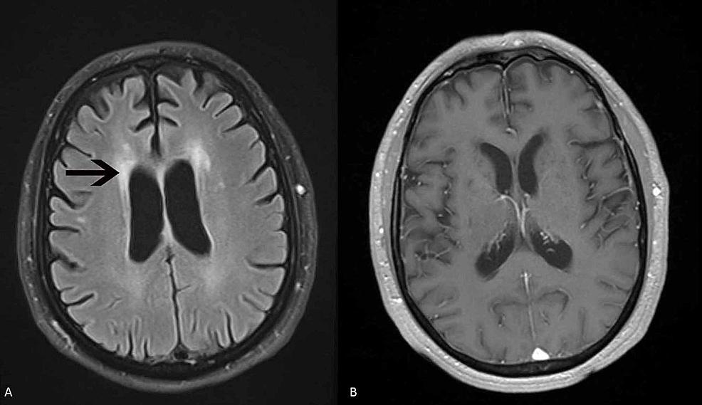 MRI-of-brain-patient-1