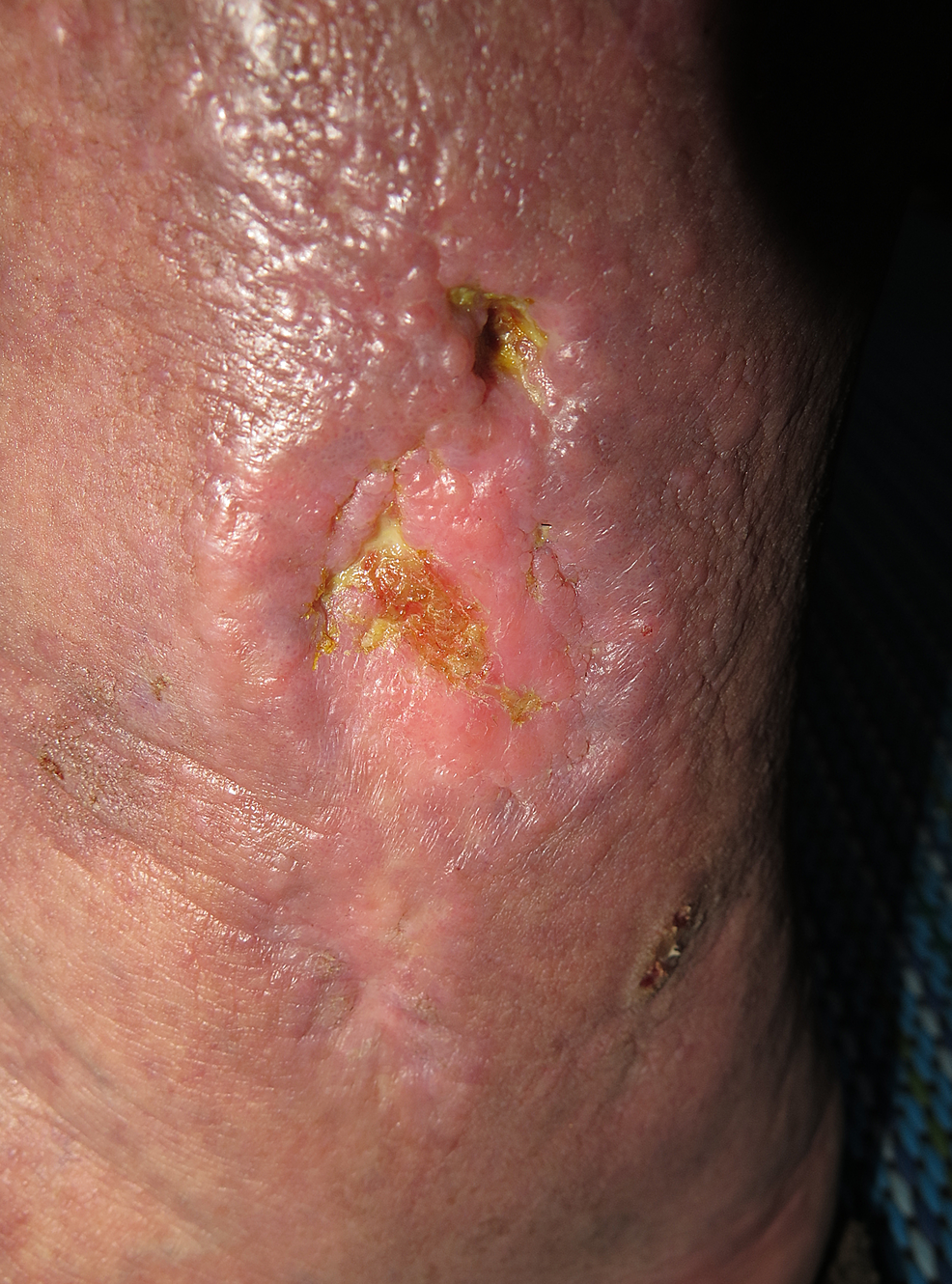 The-appearance-of-left-leg-ulcer-at-presentation