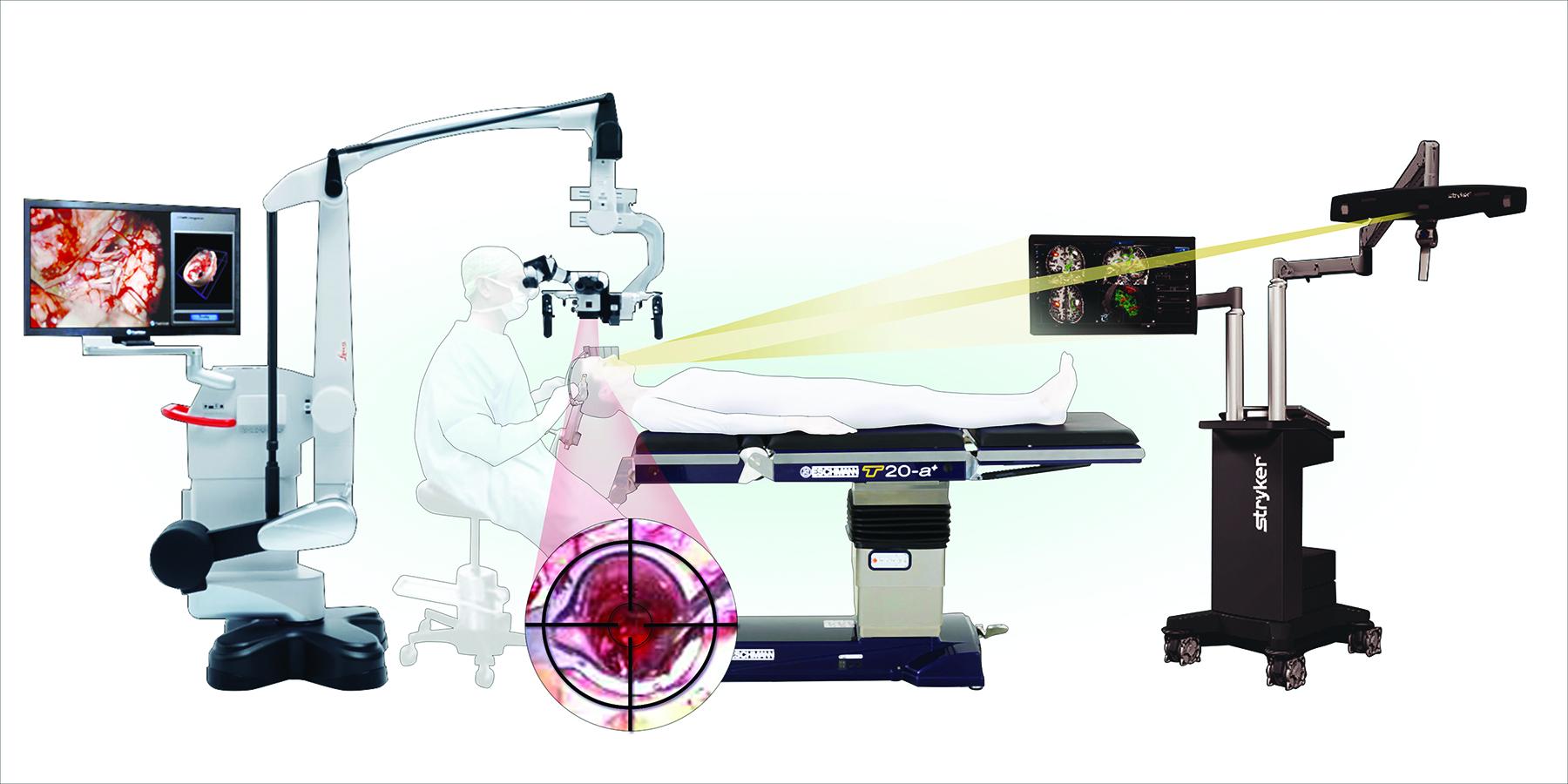 Cureus | Frameless Stereotactic Insertion of Viewsite Brain