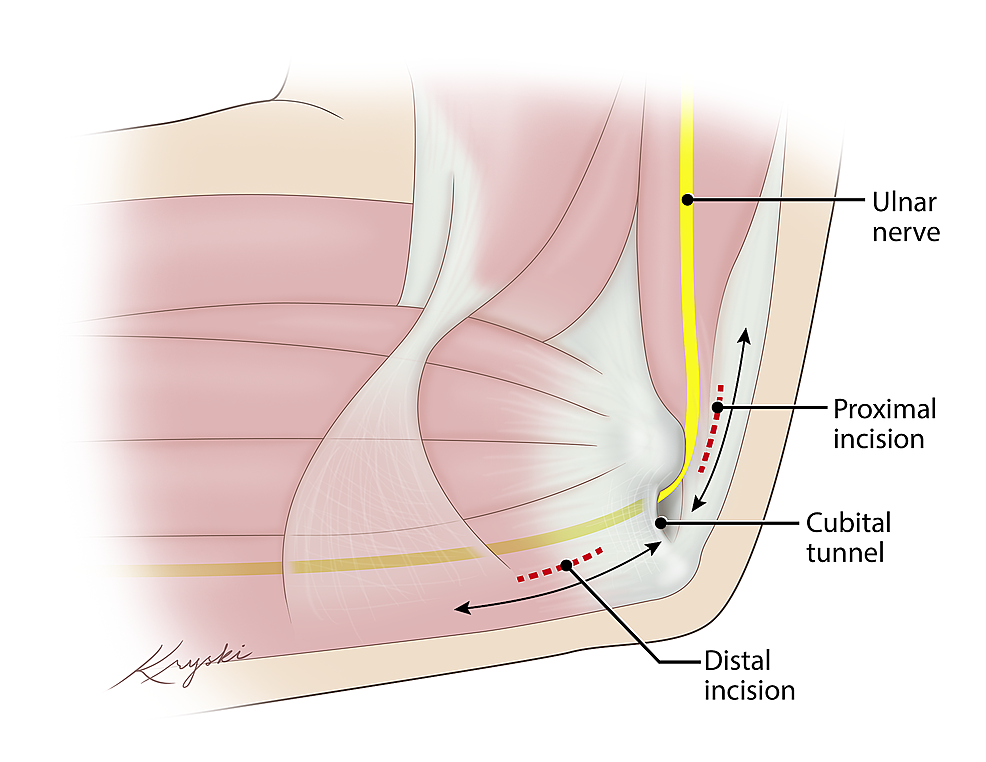 Schematic-Representation-of-Surgical-Approach