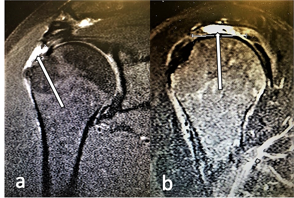 Supraspinatus-tears-depicted-in-MRI-scans.