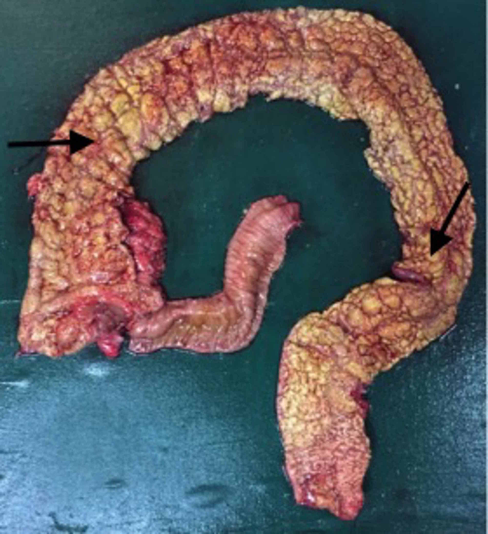 Proctocolectomy-specimen-showing-diffuse-mucosal-exudates-and-pseudo-polyps-(marked-by-arrows)