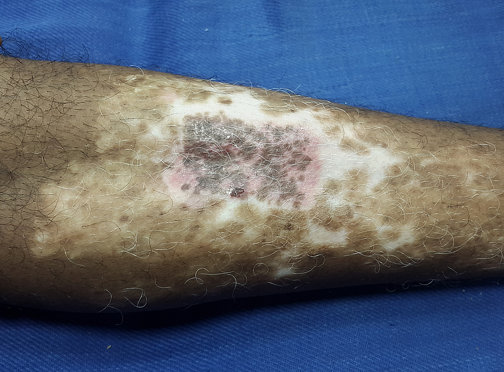 The-recipient-site-at-the-end-of-four-weeks-showing-60-70%-of-repigmentation-of-the-treated-site.