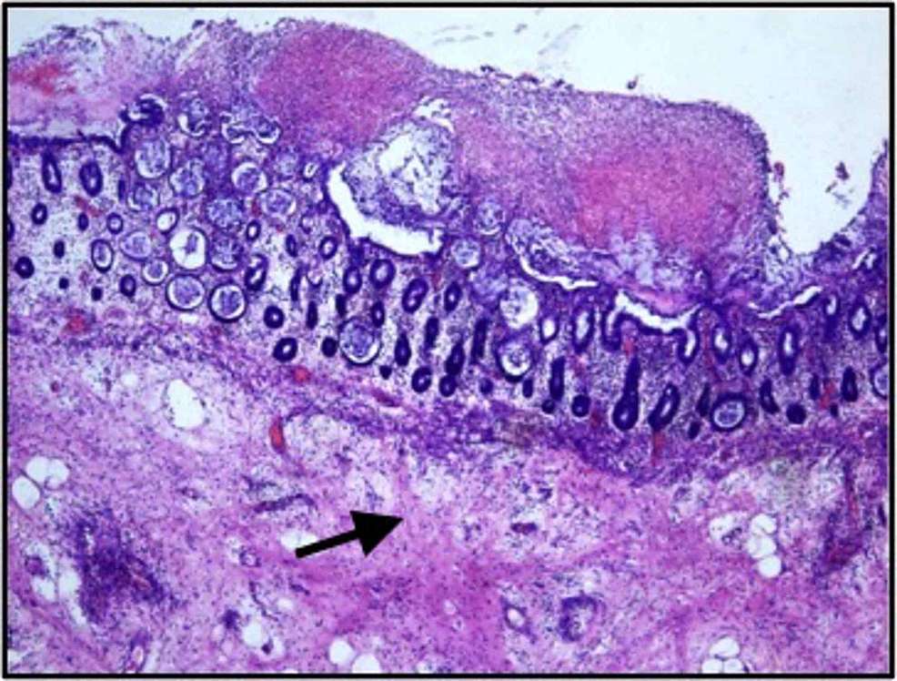 Histopathological-examination-showing-mucosal-exudates-with-unremarkable-sub-mucosa-(arrow-pointing-to-normal-submucosa)-(Hematoxylin-&-eosin;-magnification-40x)