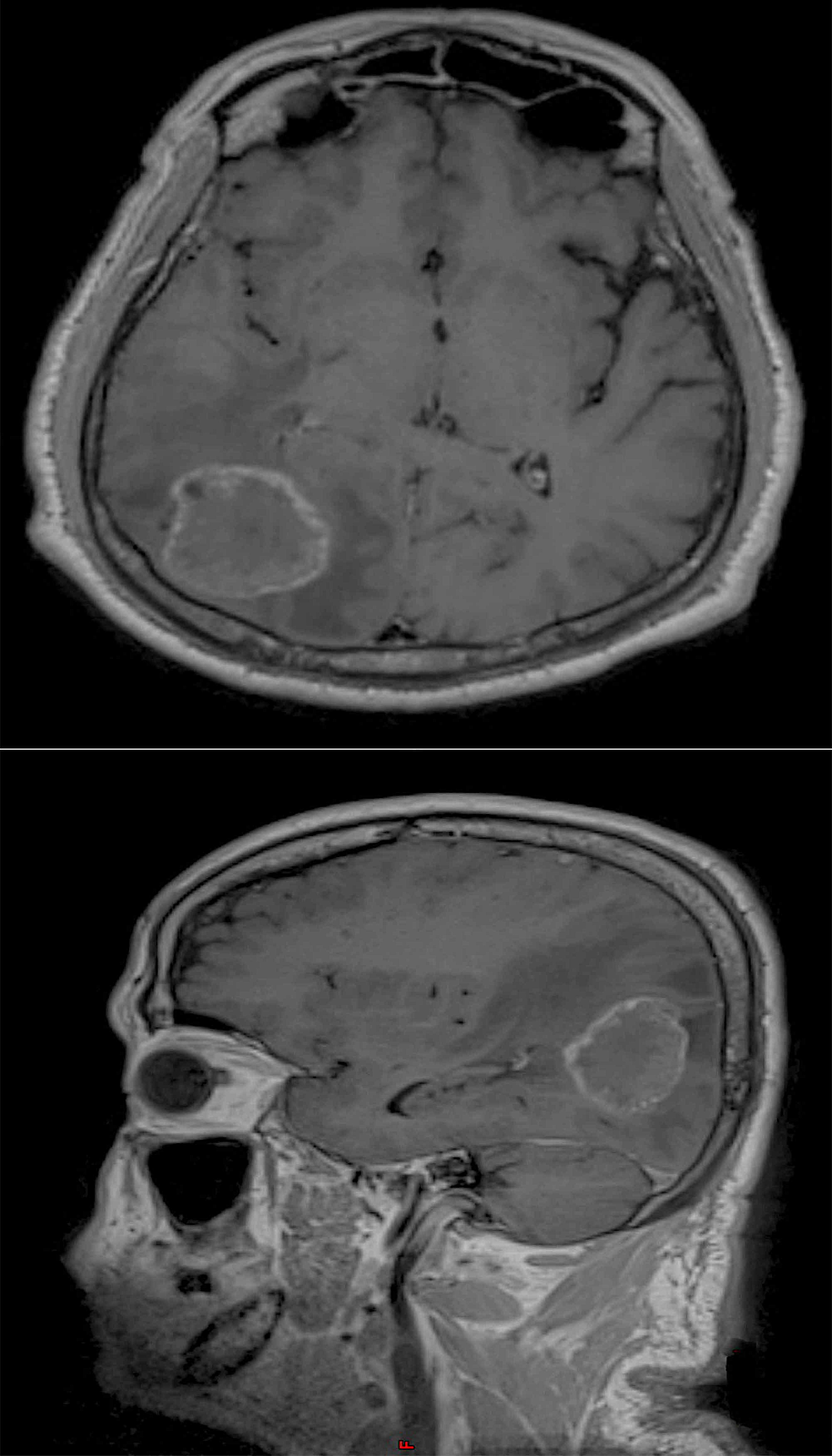 Preoperative-MRI-T1-sequence-with-contrast-showing-axial-view-(upper)-and-sagittal-view-(lower)-of-a-space-occupying-lesion-in-the-occipital-parietal-lobe