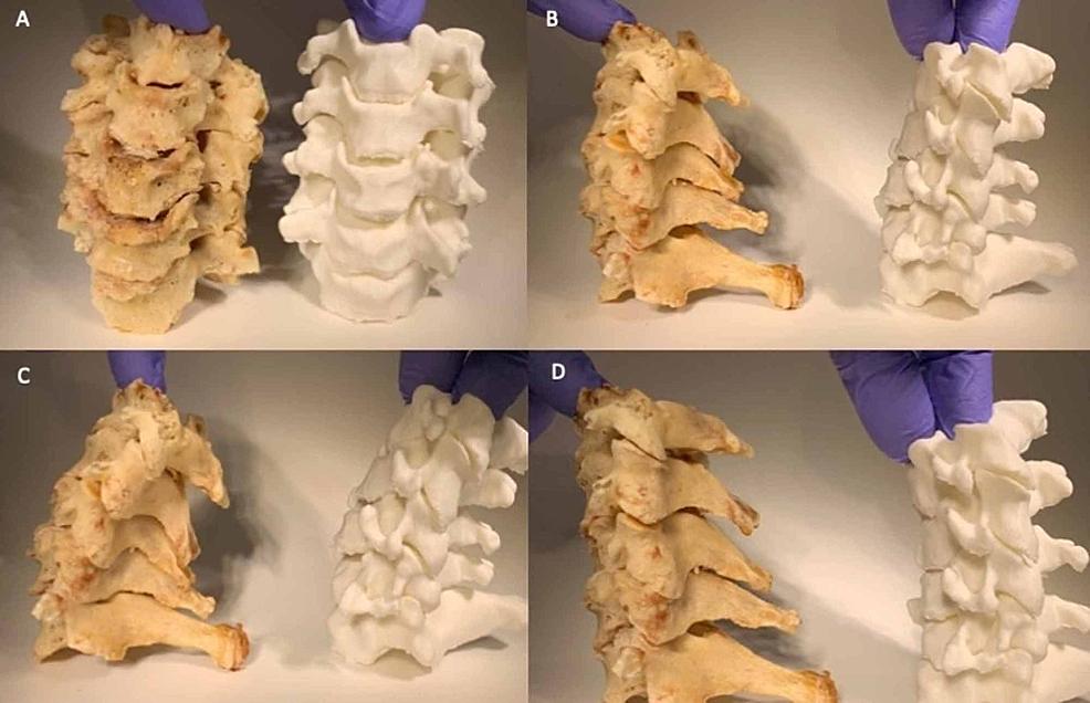 Dynamic-comparison-of-cadaveric-specimen-to-cervical-phantom.