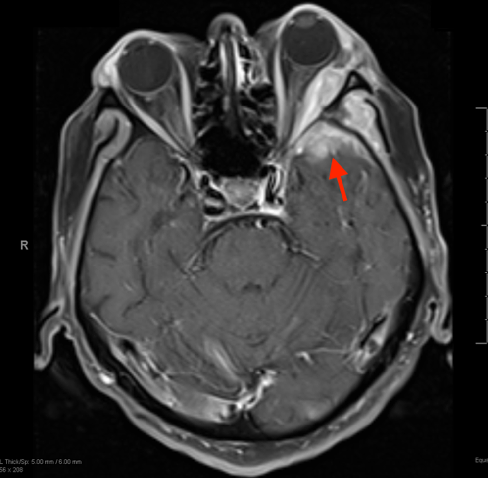 Axial-T1-MRI-of-the-brain-with-contrast-revealing-a-4.3-cm-enhancing-mass-(red-arrow)-in-the-left-anterior-temporal-and-lateral-orbital-wall.