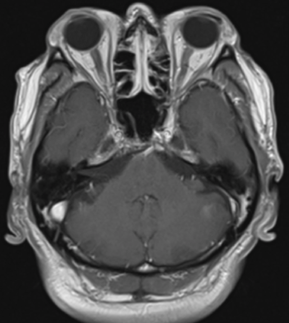 Axial-T1-MRI-of-the-brain-with-contrast-from-2014-showing-no-acute-intracranial-abnormalities-or-masses.