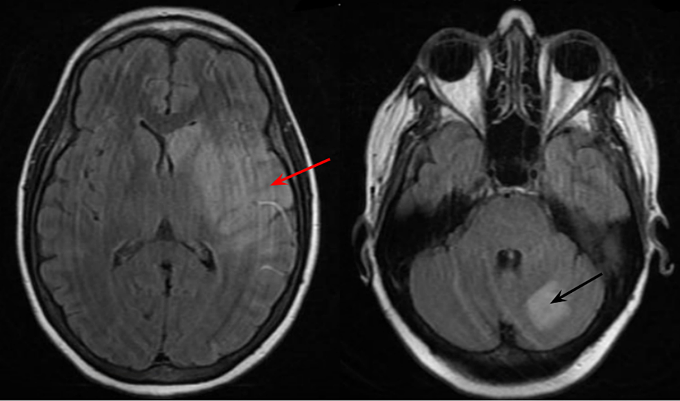 Magnetic-resonance-imaging-of-the-brain-demonstrating-multiple-large-and-small-infarcts-of-the-left-parietal-lobe-and-basal-ganglia-(red-arrow)-with-an-older-infarct-of-the-left-cerebellum-(black-arrow)-consistent-with-thromboembolic-disease.