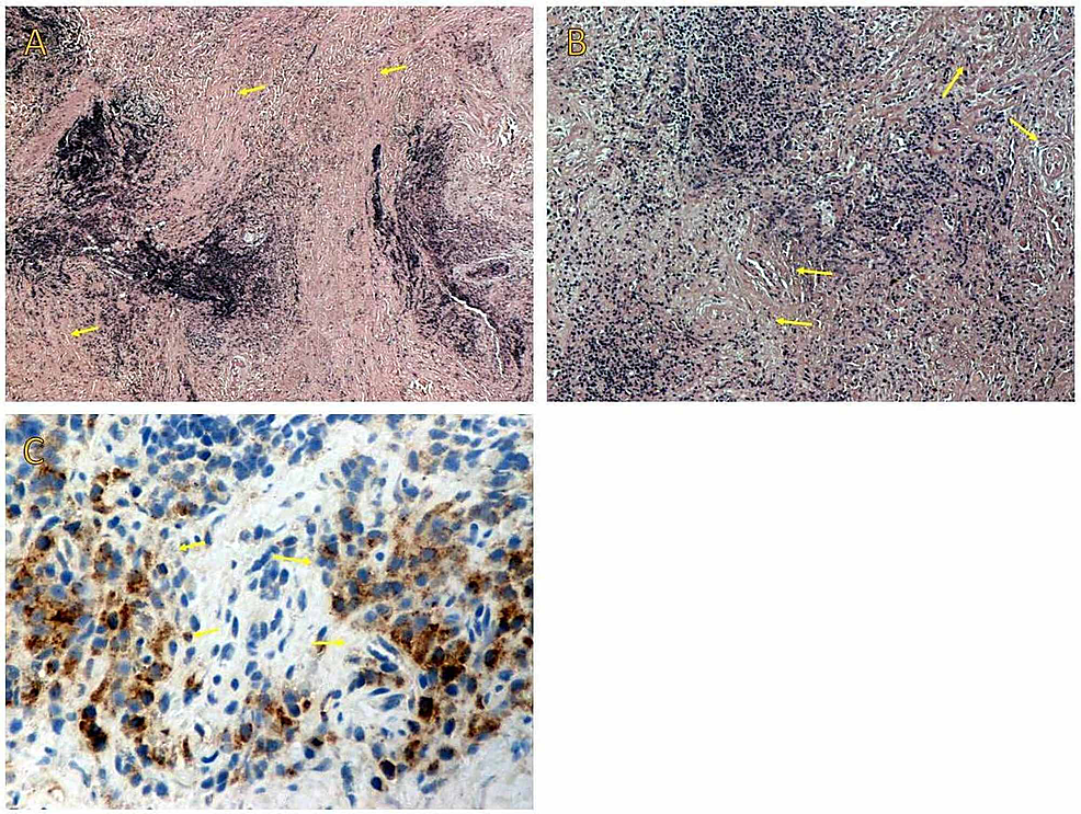 (A)-On-low-power-examination,-storiform-fibrosis-and-a-dense-lymphoplasmacytic-infiltration-are-recognized.-(B)-Obliterative-phlebitis-is-shown-on-medium-power-examination.-(C)-Immunohistochemical-stains-show-infiltration-by-IgG4-positive-plasma-cells-and-a-high-IgG4-to-IgG-positive-cell-ratio.