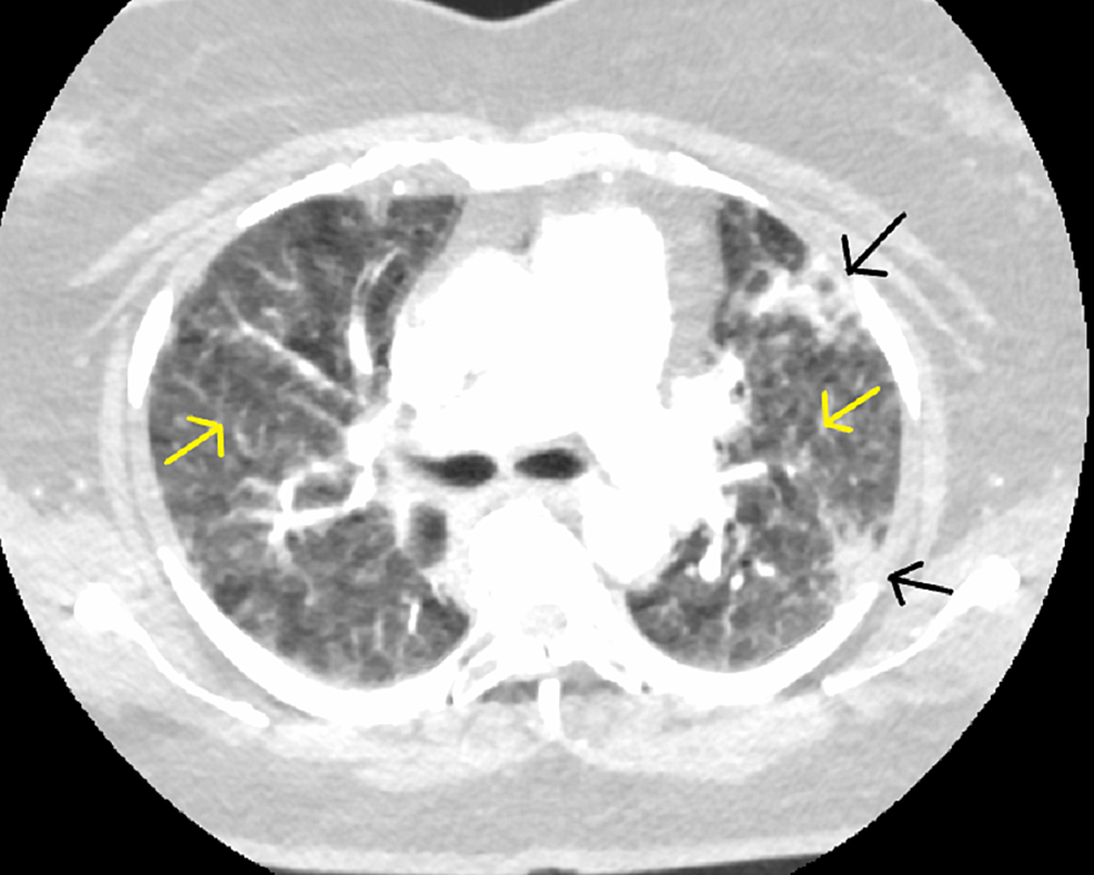 Study-compromised-by-respiratory-motion;-however,-no-main-or-segmental-pulmonary-artery-embolus-identified.-Subpleural-consolidations-present-(black-arrows)-with-mosaic-attenuation-(yellow-arrows).