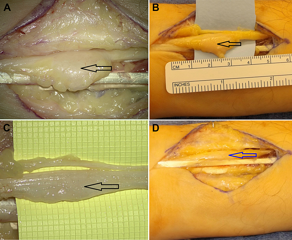 Intraoperative-Image