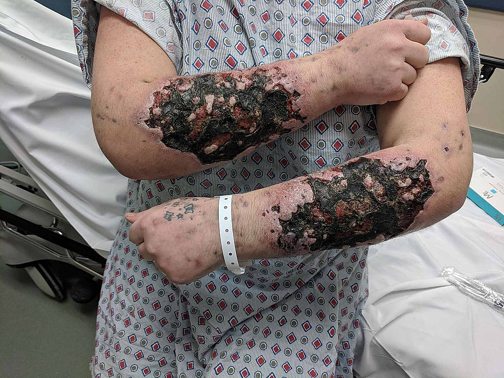 Black-and-green-necrotic-and-scaly-lesions-of-the-patient's-forearms.