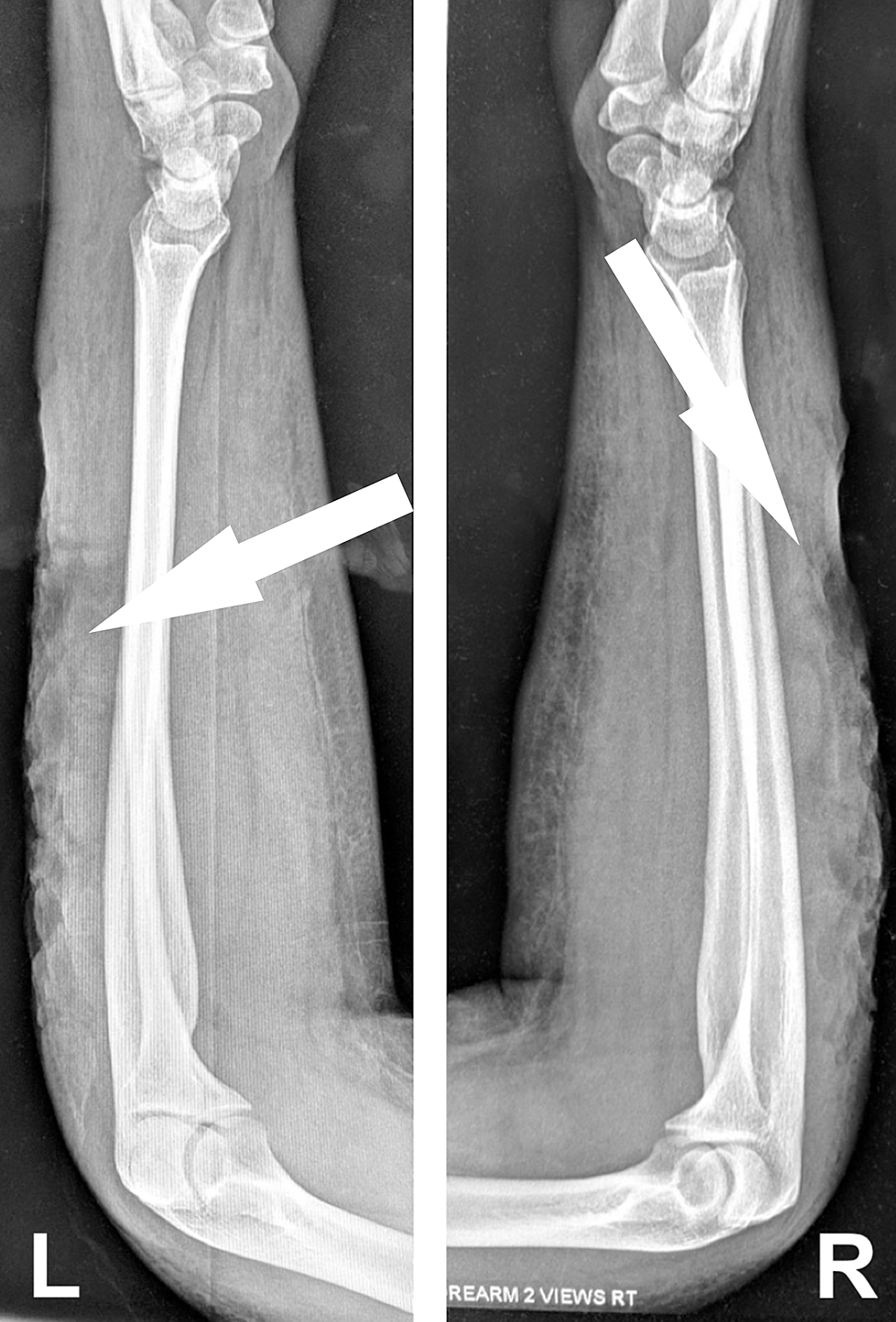 Radiographs-of-the-forearms-demonstrating-gas-within-the-soft-tissue.