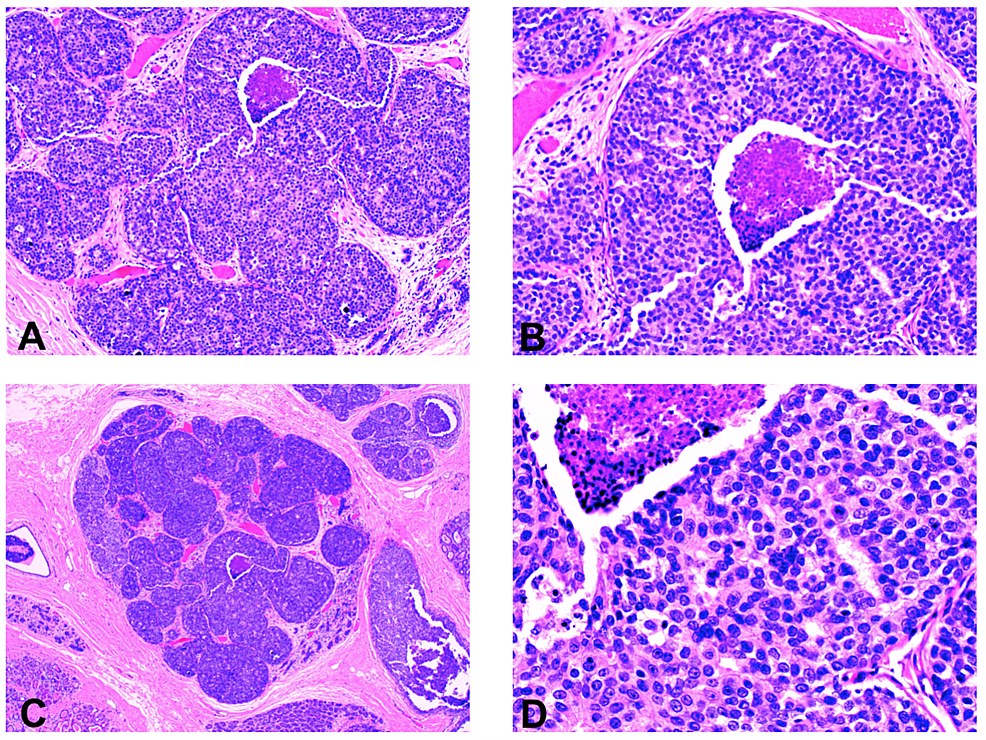 The-pathology-specimen-demonstrates-ductal-carcinoma-in-situ-(DCIS)-of-the-left-breast