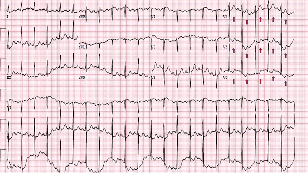 Electrocardiogram-showing-sinus-tachycardia-in-addition-to-nonspecific-ST-and-T-wave-abnormalities-(red-arrows)-in-leads-V4--V6