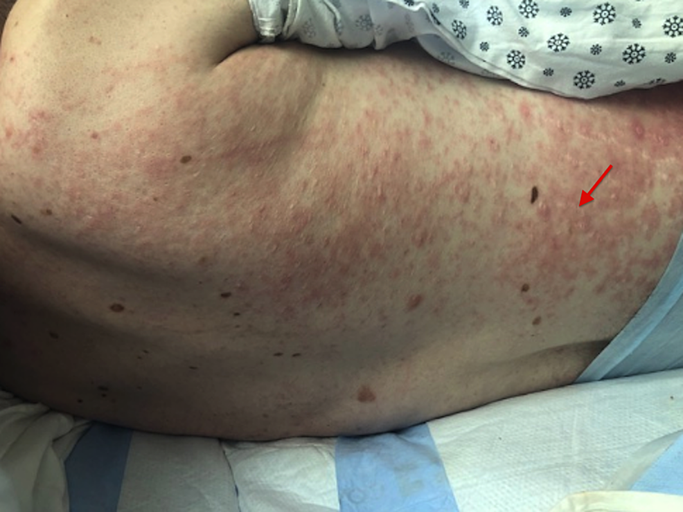 Zosyn-induced-maculopapular-rash-with-excoriations